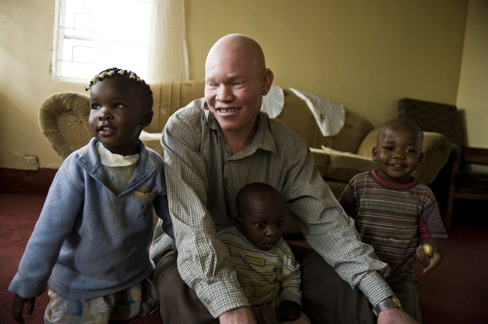 albinos_07_01.jpg