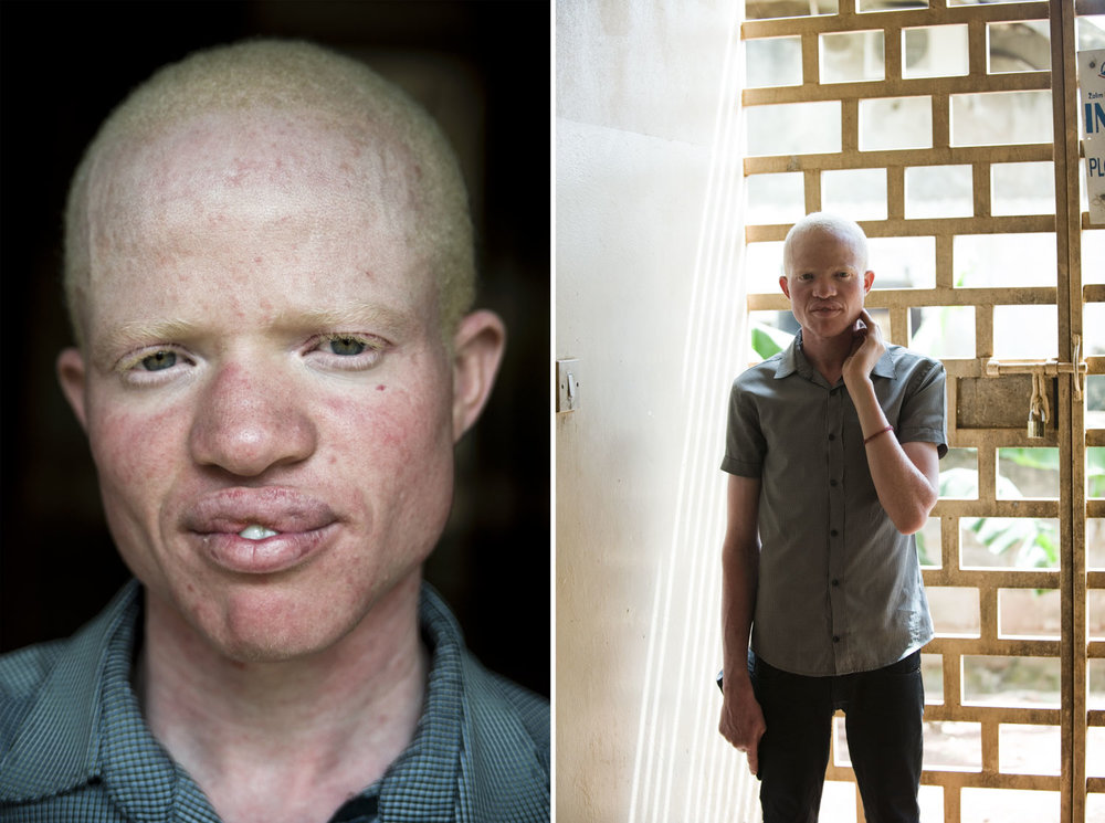 albinos_09.jpg