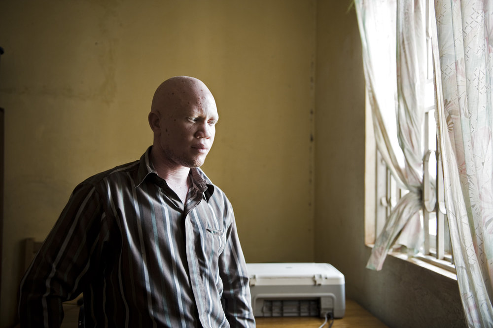 albinos_14_00.jpg