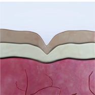Hautschichten vor der Behandlung mit Coolifting