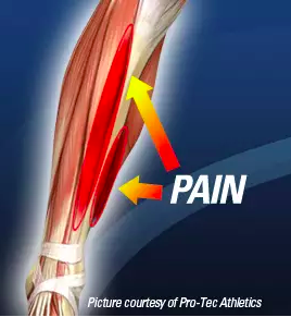 SHIN SPLINTS: SYMPTOMS, TREATMENT & PREVENTION -