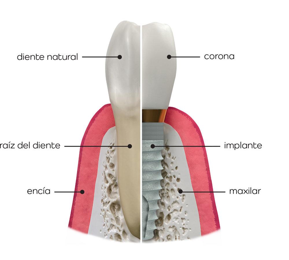 IMPLANTE CON CORONA Y SU HOMÓLOGO NATURAL - En la ilustración podemos observar la manera en la que un implante con corona sustituye al diente natural y las estructuras más relevantes que intervienen en su fijación al hueso maxilar.