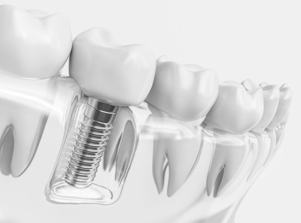 IMPLANTOLOGÍA ORAL AVANZADA - Maxilodental® es el referente en colocación de implantes dentales. Contamos con un equipo de cirujanos de impecable reputación y larguísima experiencia que le ofrecerán la máxima seguridad y garantía.