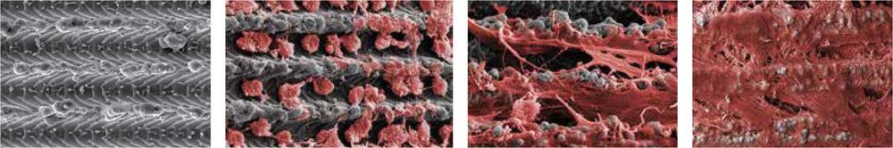 Imagen tomada con microscopio electrónico de la superficie del implante integrándose con el hueso.