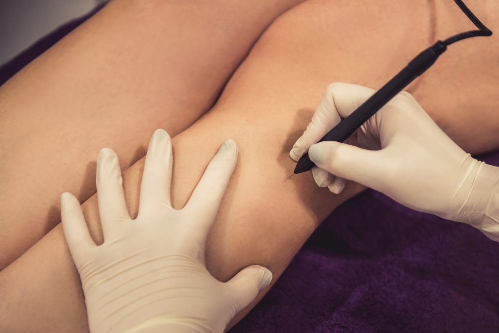 Electrolysis And Laser Hair Removal - 5 Minutes...................$13.00 and up10 Minutes.................$25.00 and up15 Minutes.................$23.00 and up30 Minutes................$43.00 and up60 Minutes...............$72.00 and up90 Minutes……………$96.00 and upLaser for all Areas......We Offer a complimentary 30 minute consultation, patch test and price quote. Prices may vary depending on the area of the body you are removing the hair from. We also offer a complimentary electrolysis consultation.