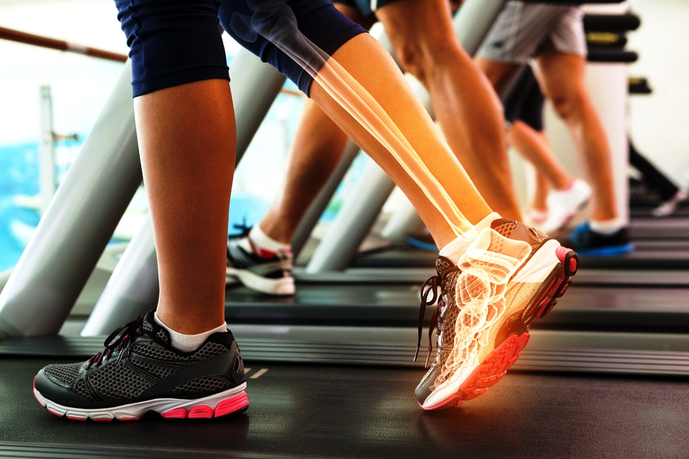 gait analysis for custom molded orthotics