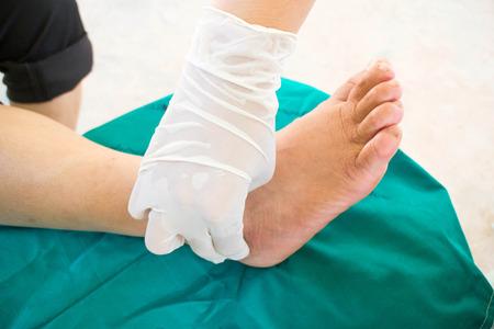 33084893_S_toes_diabetes_ overlapping_mallet_ hammertoe_doctor_hand.jpg