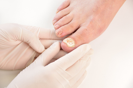 Toenail Fungus Can Strike Even In Winter Podiatrycare P C And The Heel Pain Center