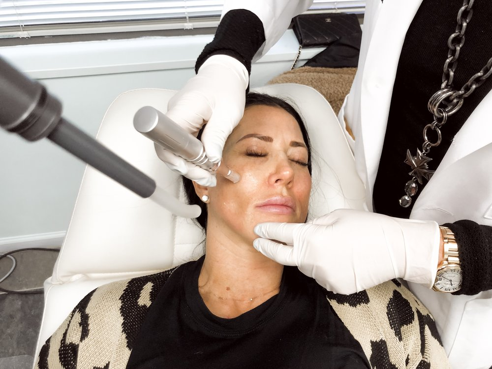 microneedling treatment - Provided by Dr West with The West Institute