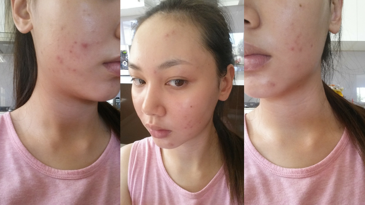 Why Roaccutane Has Been The Best Thing For My Skin Le Wendy
