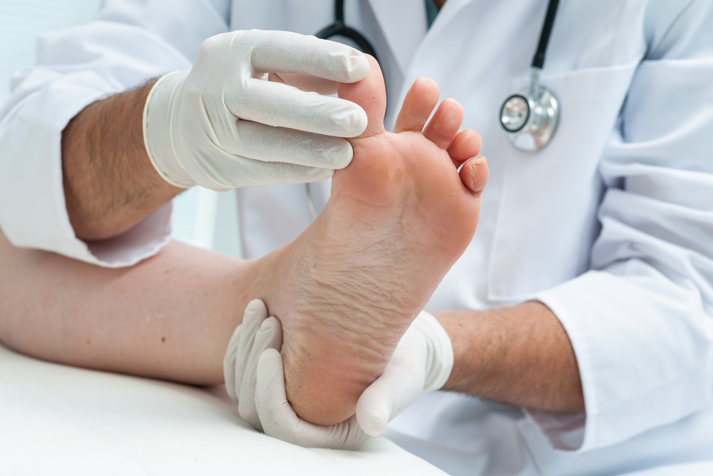 verruca needling warts london podiatry heena patel foot clinic.jpg