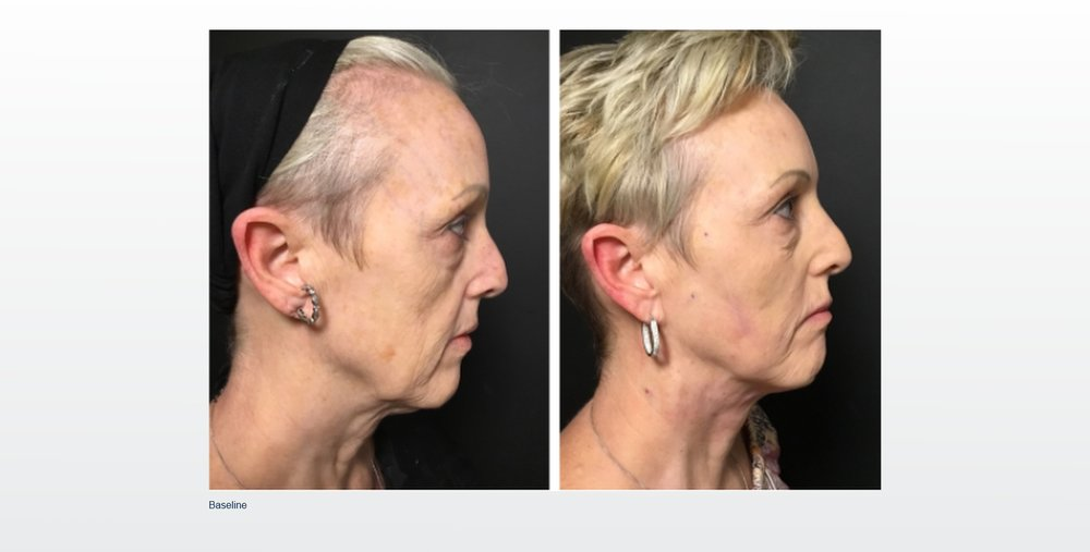 Before and after picture set of PDO non-surgical lift.