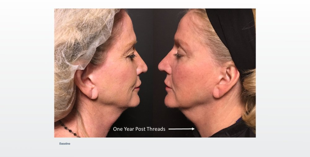 Before and after picture of PDO non-surgical lift.