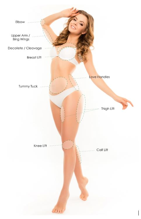 Graphic of woman with treatable body areas.