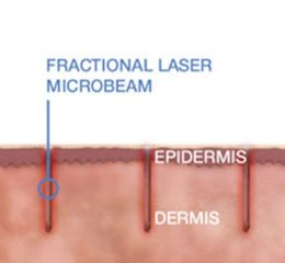 Graphic showing how deep the laser treatment goes into the skin.