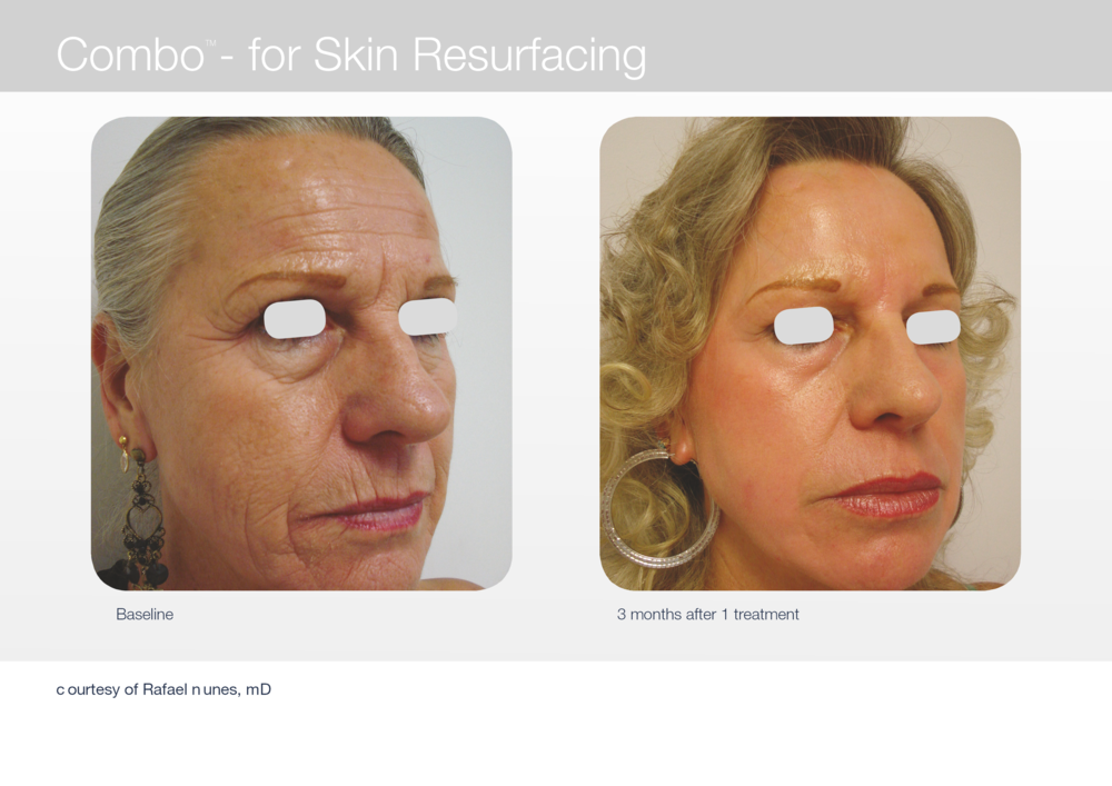 Before and after picture of women who received face resurfacing treatment.