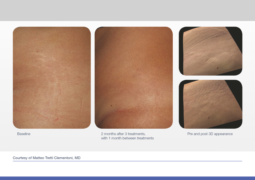 Before and after picture of stretch mark area treated with laser resurfacing.