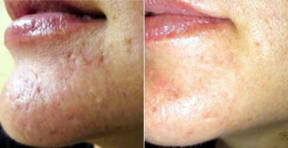 Before and after picture set for micro needling treatments.