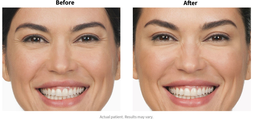 Before and after picture set of Botox Cosmetic.