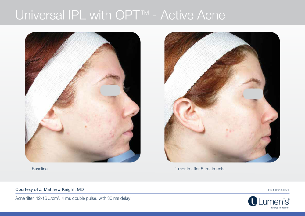 Before and after picture for acne laser treatment.