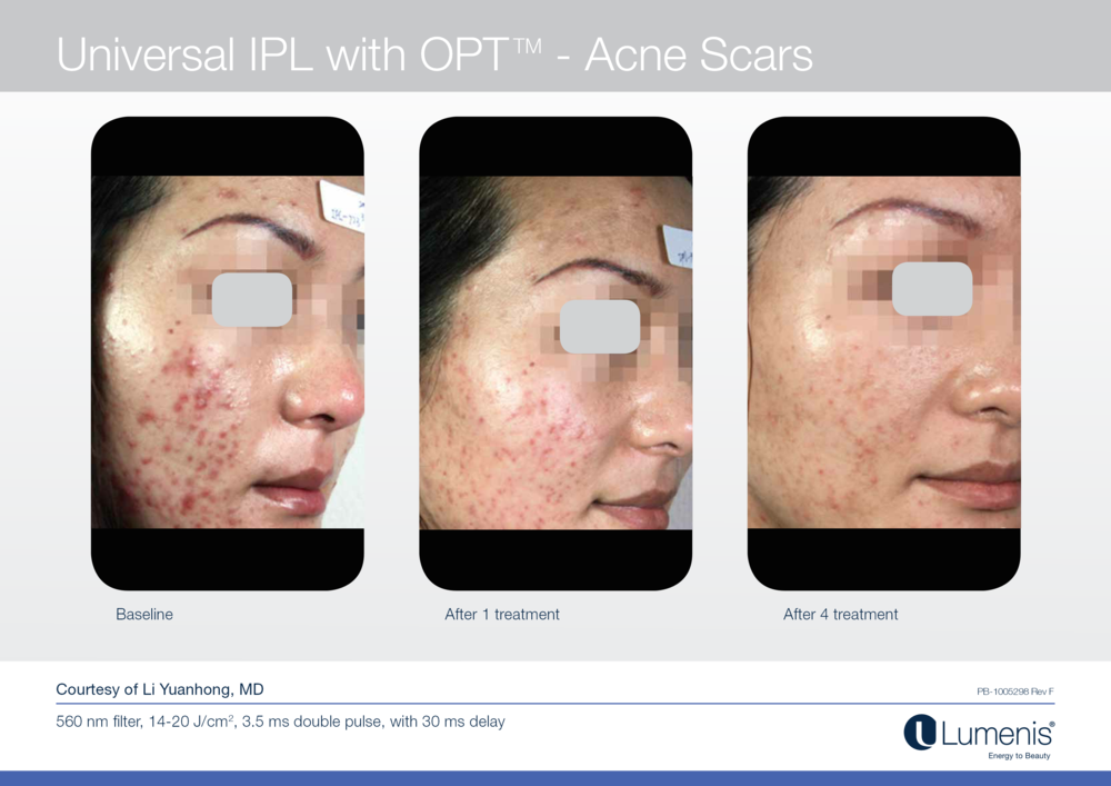 Before and after pictures for inflammatory acne laser treatment.