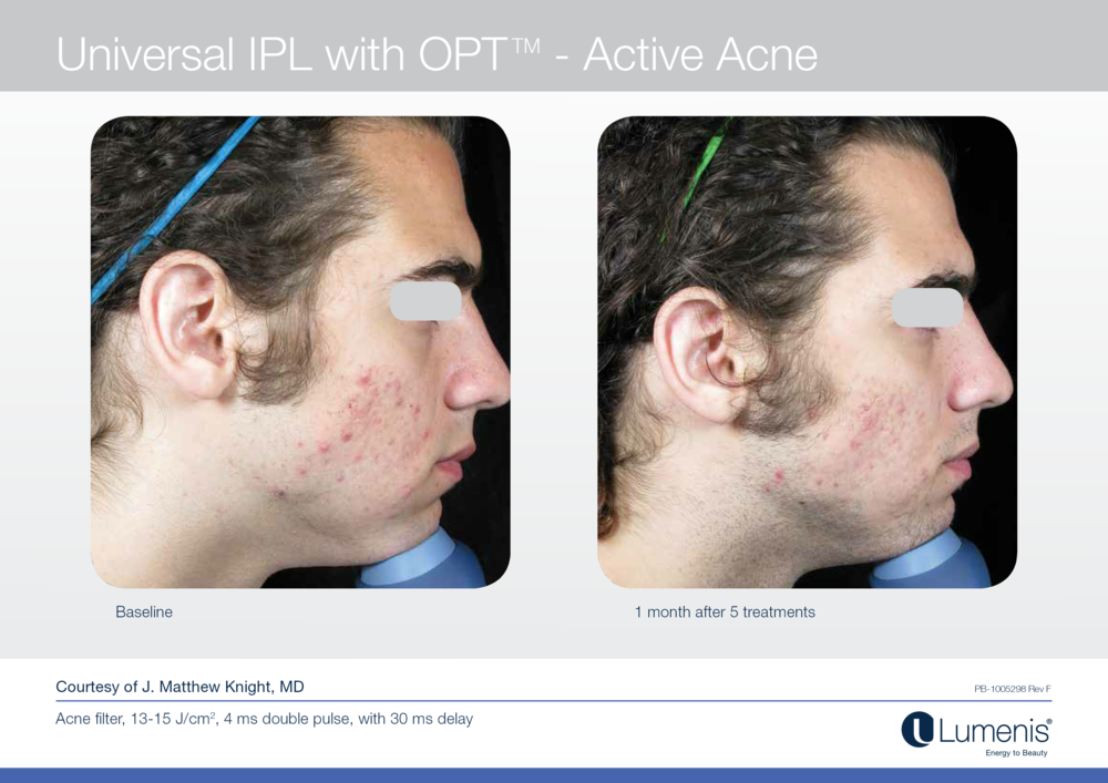Before and after picture for laser treatment for acne.