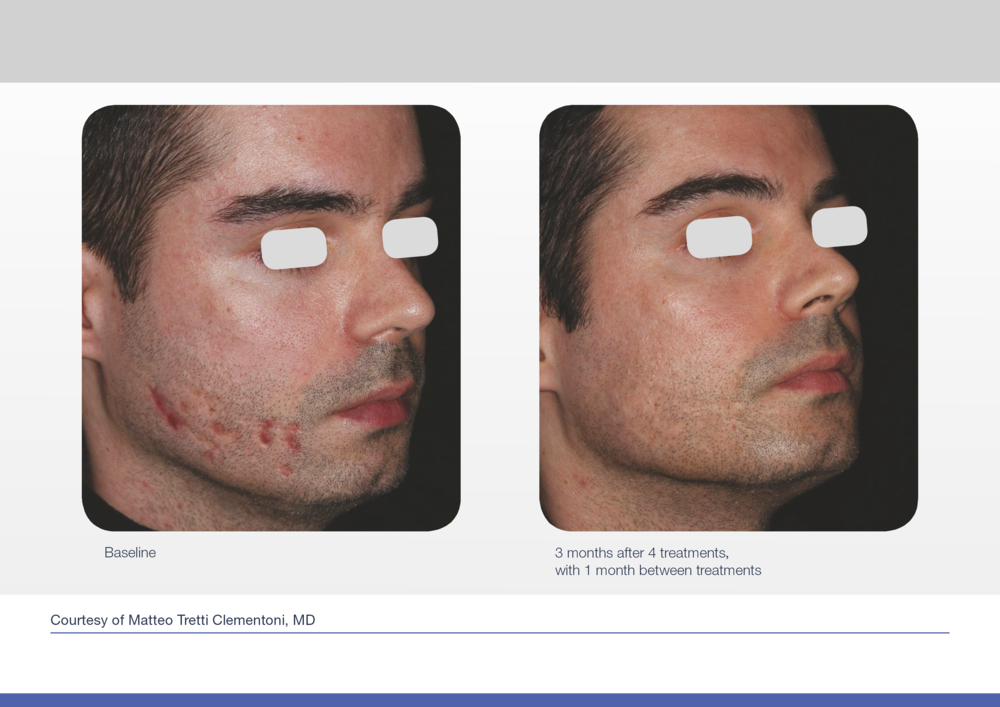 Before and after picture for acne scar laser treatment.