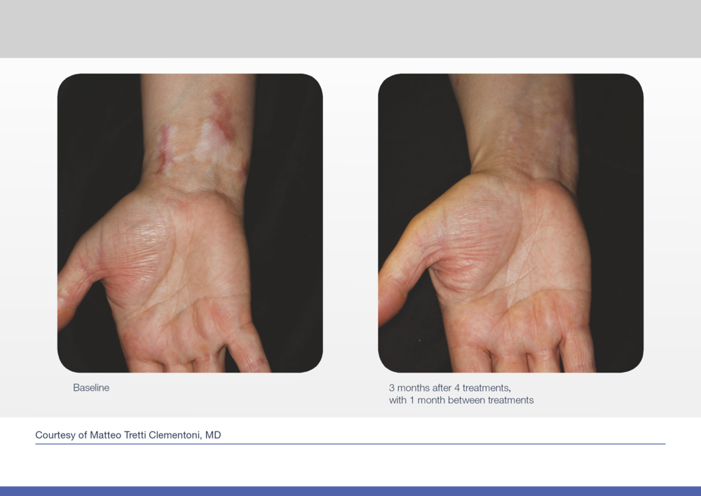 Before and after pictures for acne scar treatment on hands.