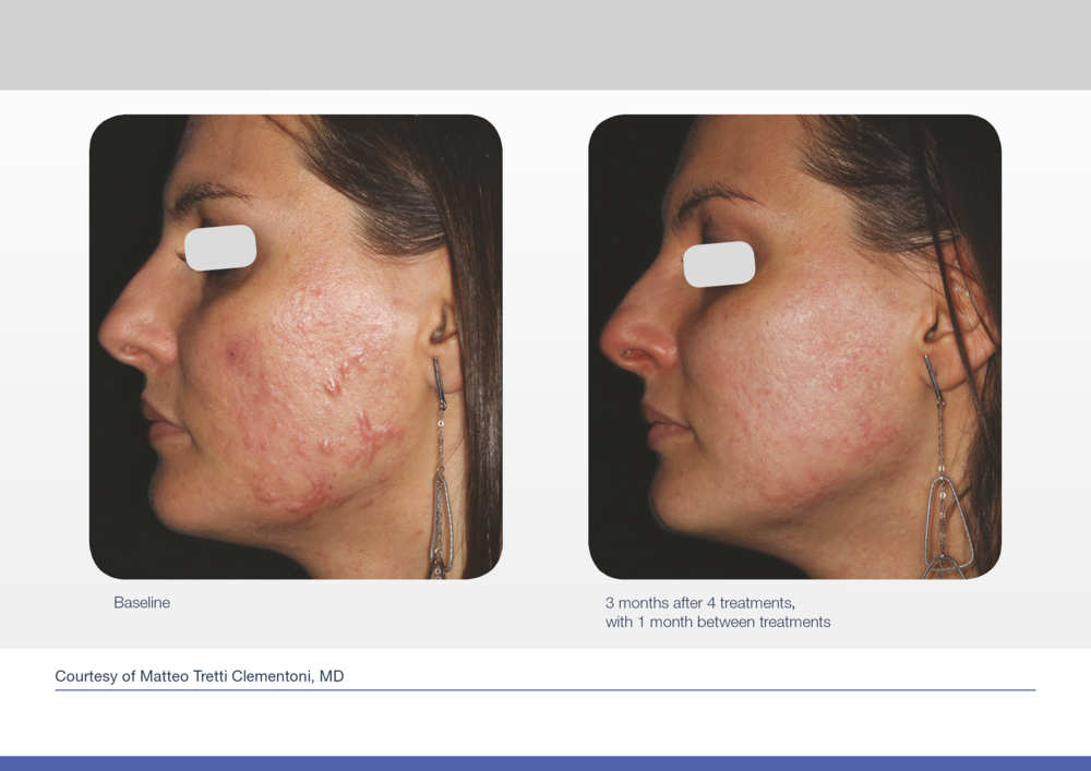 Before and after picture for acne laser treatment for acne.