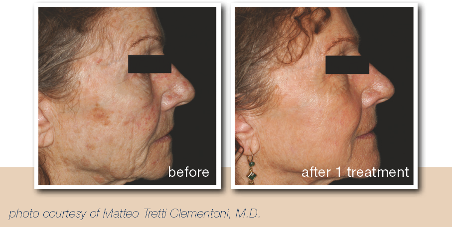 Before and after pictures for patients with deep wrinkles.
