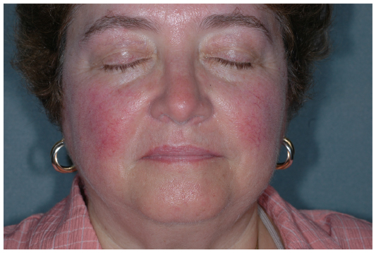 Picture of woman with rosacea.