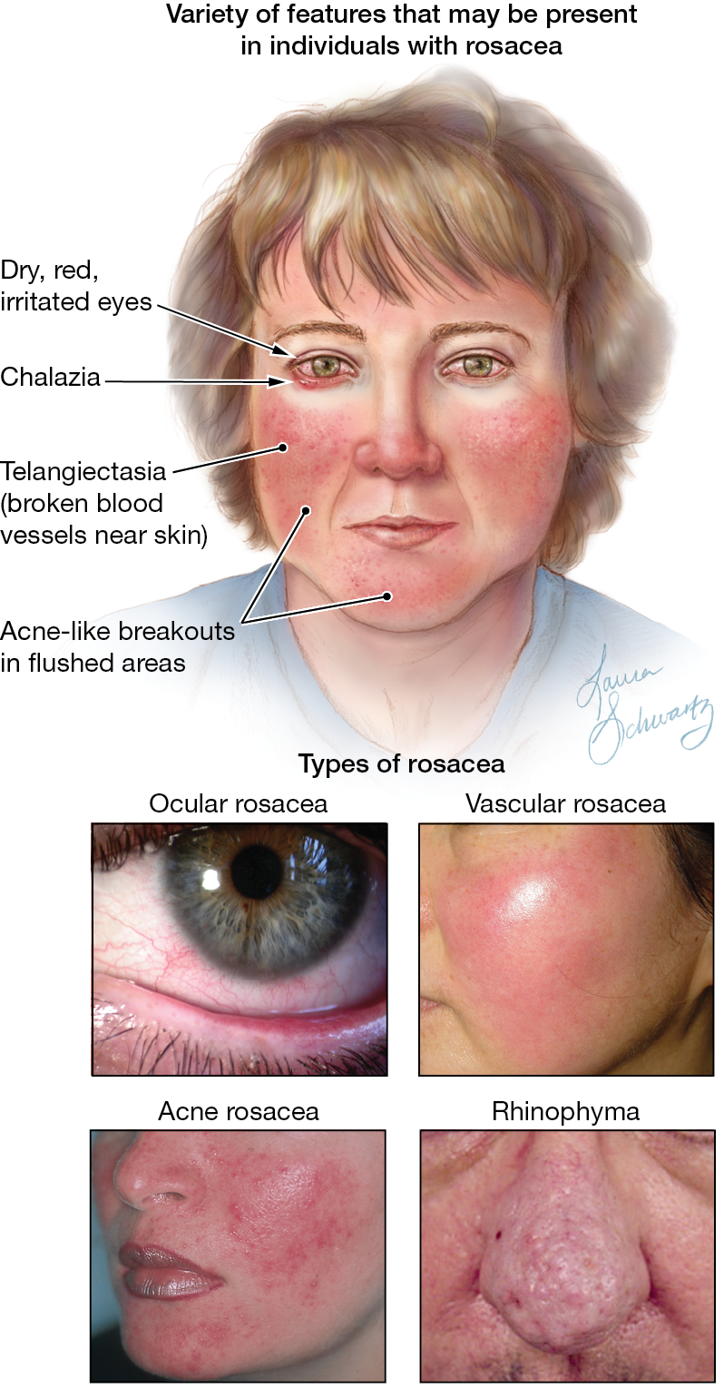 Graphic showing progression of rosacea from moderate to severe.