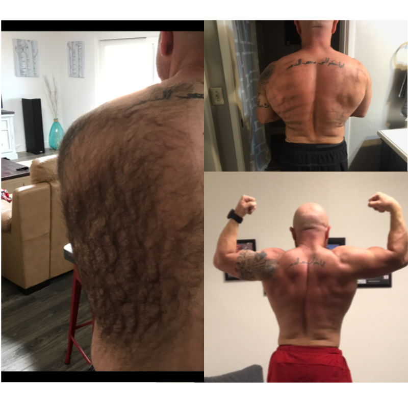 Male Patient Back Progression LHR.png