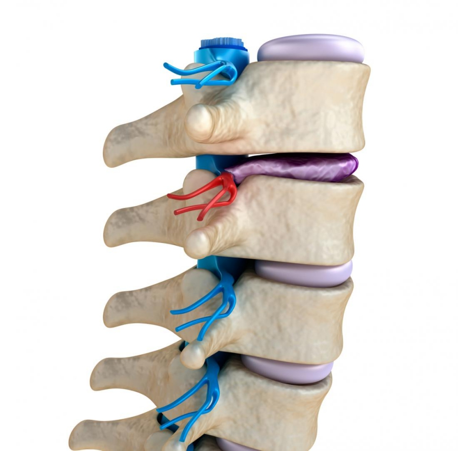degenerative-disc-disease-integrated-physicians-medical-group_the-integrated-brain-and-spine-center-for-functional-neurology-and-medicine.jpg