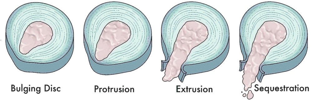 In general, there are three to four types (or classifications) of disc herniations, - depending on the radiologist who is reading your MRI.