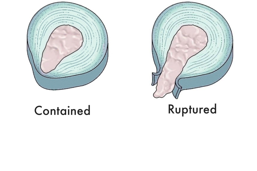A contained herniated disc  protrusion  versus a ruptured herniated disc  extrusion
