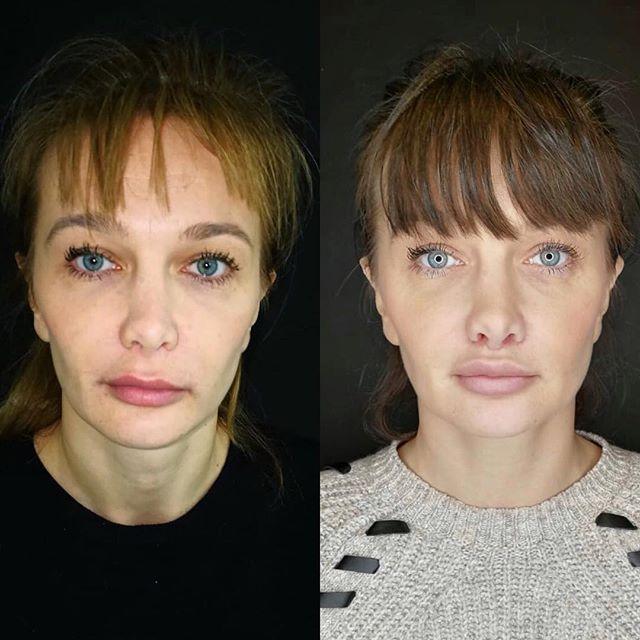 Implant de lèvres et lip lift. Nous avons une fois encore ici de super résultats!  Lips implant and lip lift. Again, showing some great results here! @drnzwillinger 🙌🏽 #beforeafter  #plasticsurgery #plasticsurgeon #cosmeticsurgery #beauty #botox #liposuction #breastaugmentation #tummytuck #lipo #surgery #rhinoplasty #bbl #fillers #aesthetics #skincare #mommymakeover #beforeandafter #breastlift #cirugiaplastica #brazilianbuttlift #liposculpture #fitness #cosmeticsurgeon #facelift #juvederm #surgeon #lipoescultura #love #beautiful