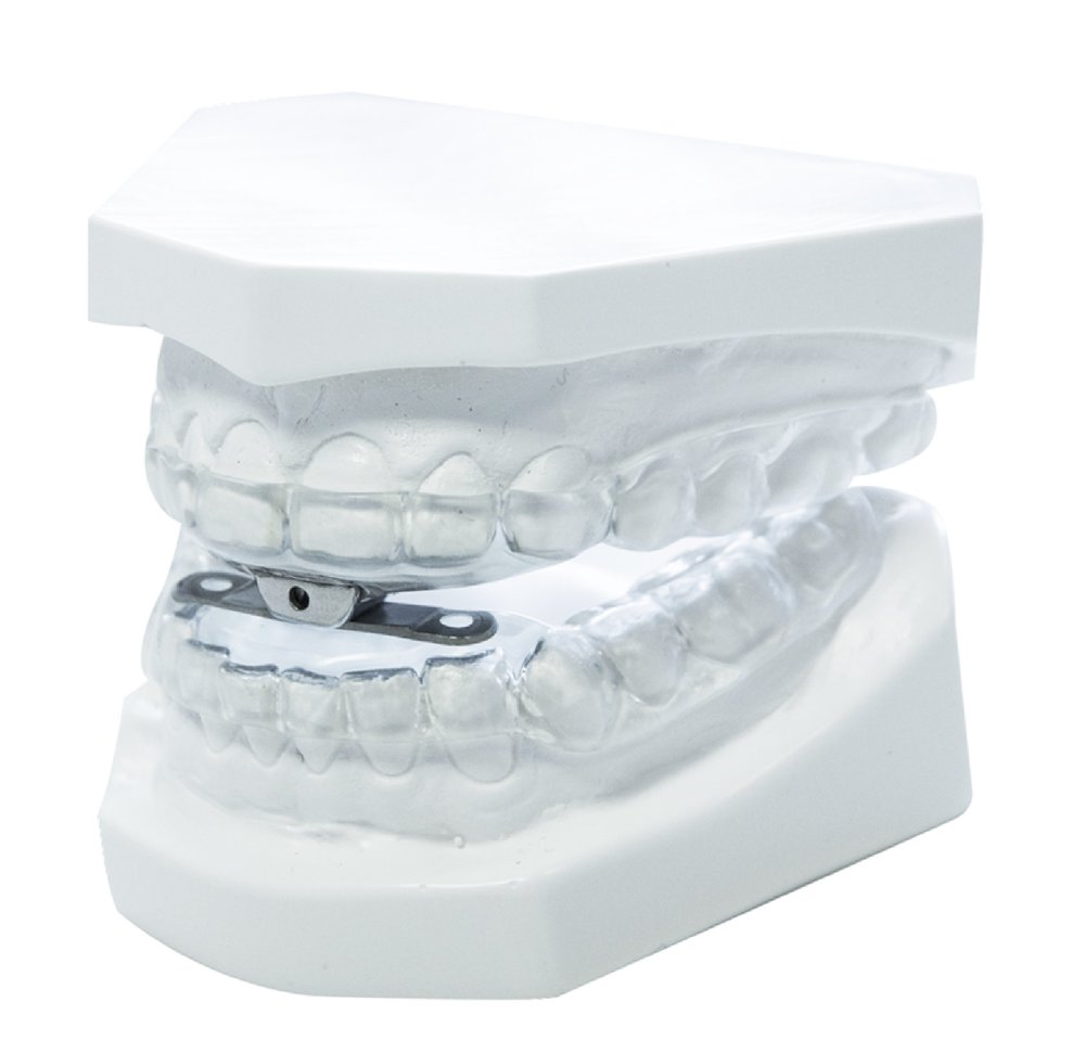 Sleepwell - MAS - (Mandibular Advancement Splint)Cost £350.00
