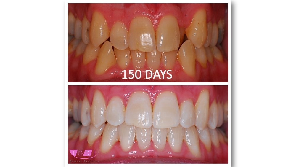 FASTBRACES® - And ZOOM Advanced Whitening - Results in a matter of DAYS