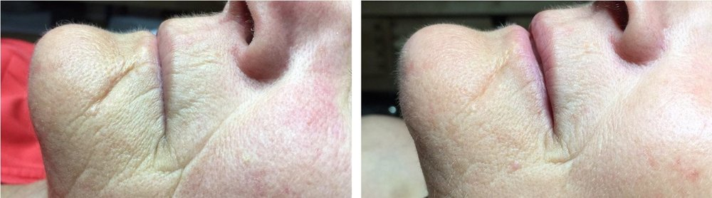 Used Celluma two times a week for 4 weeks. Pictures from  Celluma website .