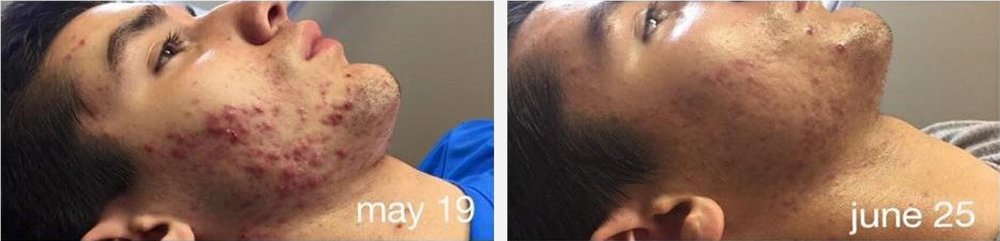 Used Celluma two times a week for 5 week. Pictures from  Celluma website.