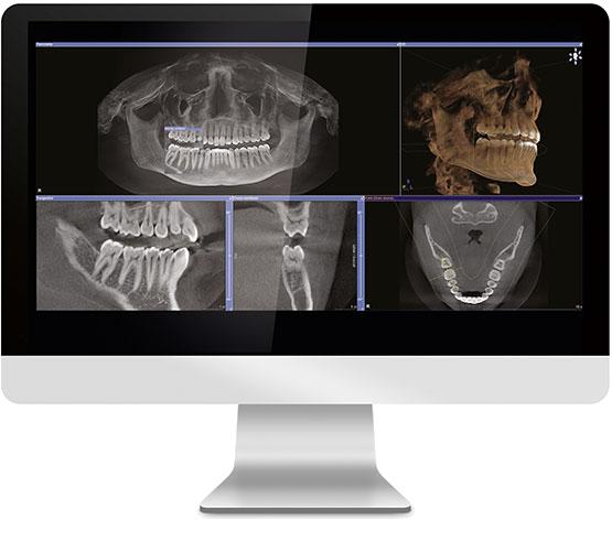 3D-x-rays-computer.jpg