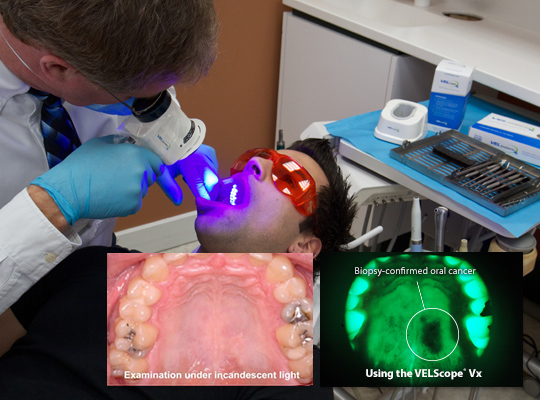 The VELscope® Vx adjunctive device is effective for the enhanced visualization of oral mucosal abnormalities.