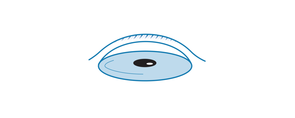Icon illustrating Corneal Dystrophy.