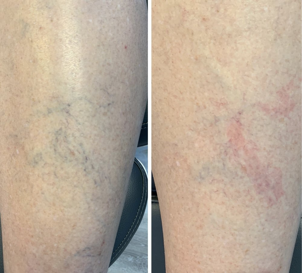 Left shows before the shin was treated. The right is after one laser pulse. Full treatment can sometimes take multiple treatments.
