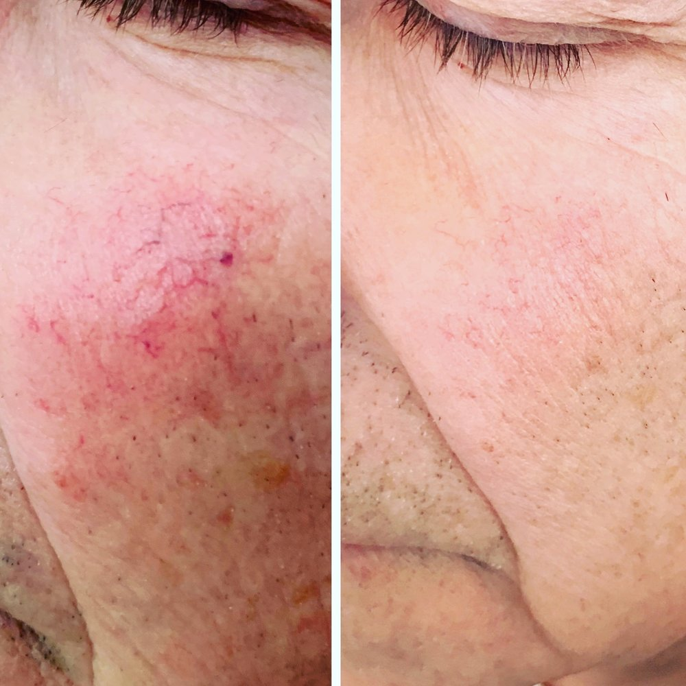 Left shows spider veins just to the side of the crease below the nose. The right is after one laser pulse.