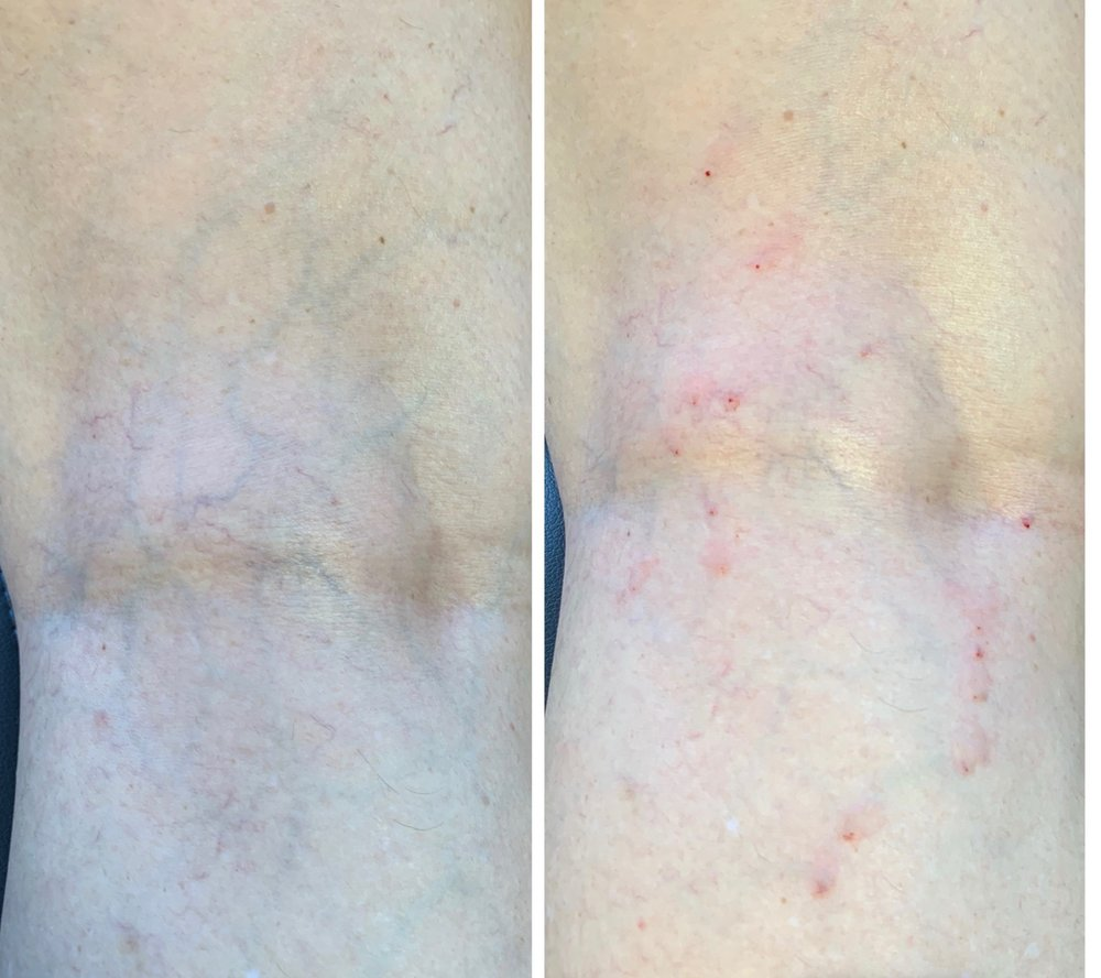 Left image shows unsightly reticular veins on the back of the knee. The right photo shows immediately after injection of chemical sclerosant.