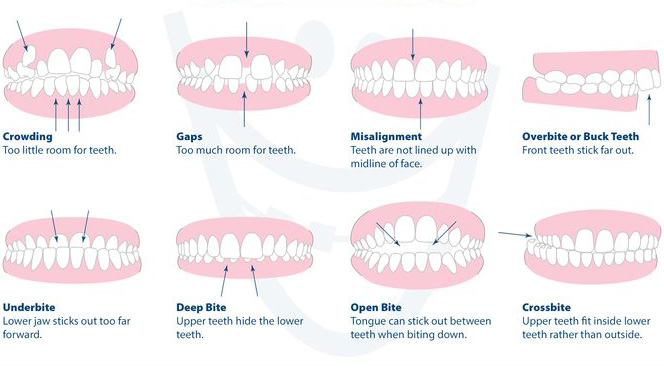 invisalign-toronto-bite-types.jpg