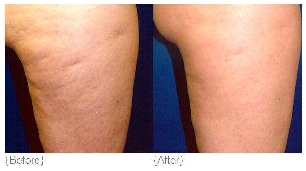 {cellulite} - Diagnosis: Cellulite occurs through poor circulation and poor lymphatic drainage which cause fat cells to become engorged. These fat cells then push against the connective tissue beneath a person's skin to cause the surface of the skin to dimple or pucker and look lumpy. Oestrogen stimulates collagenase formation in the skin's connective tissues. Collagenase breaks down the connective tissue, weakening collagen and causing fat to bulge upward to form a lumpy surface. It is typically caused by factors such as genetics, hormones, hypothyroidism, lack of exercise, poor blood circulation and lymphatics.Solution: DMK regulates the dysfunctions and restores homeostasis, enhancing the blood and lymphatic circulation and increasing the amount of oxygen delivered to the tissue. This flushes out toxins and strengthens the all important connective tissue which is the essence of strong smooth skin.Products: hydra louffa, body sculpting crème, maximum moisture, DMK efa+Treatments: Body Sculpting, Body Enzyme Therapy, Body Firming Program