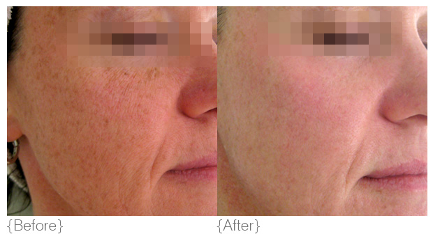 {pigmentation} - Diagnosis: Pigmentation occurs in two different forms; passive and inflammatory. Inflammatory pigmentation occurs as a result of the activation of our skin's natural defence mechanisms. Melanin moves up to defend against trauma caused by factors such as sun exposure, poor products or injury.Passive pigmentation results from an internal imbalance which stimulates the melanin stimulating hormone. These imbalances can be caused by pregnancy, hormonal imbalances, the contraceptive pill and various medications.Solution: DMK revises pigmentation, brightens and refreshes the skin by removing dead cell build up, the accumulation of melanin (dark patches) and suppresses further melanin production by inhibiting the enzyme tyrosinase in the skin. DMK analyses the individual case of pigmentation and tailors a targeted treatment program.Products: deep pore cleanser or milk cleanser, direct delivery vitamin c serum, beta gel, herbal pigment oil, herb & mineral mist, melanoplex crème, eyetone or fineline crème, hydrophilic crème, transdermal sunblock, super bright, retosin, foamy lift and exoderma peel, DMK efa+Treatments: Melanozone, Bihaku, melanoplex drops, Pro Alpha Six-layer Peel, RP (remodelling procedures), Pro Peel